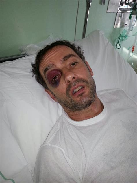 zingari rumeni coppietta in balia di 4 romeni lui pestato a sangue