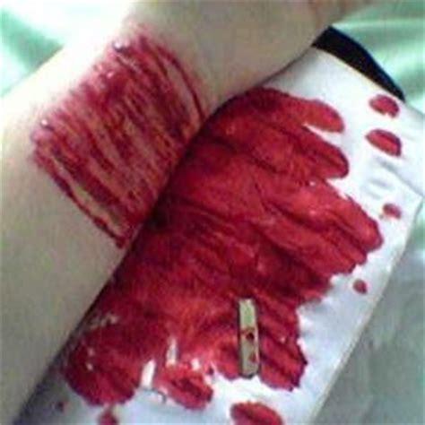 imagenes reales de venas cortadas justin bieber provoca que sus fans se corten las venas
