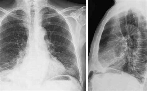 rx horizonte imagenes medicas y odontologicas importancia de la radiograf 237 a de torax diagn 243 stico