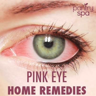 pink eye home remedy 7 conjunctivitis home remedies pink eye treatments