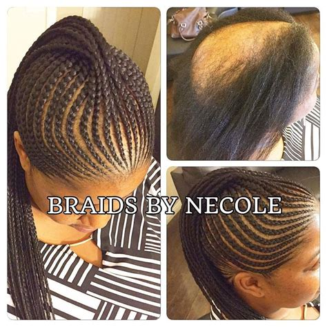braids to cover edges 14 extraordinary alopecia camouflage cornrows by braids by
