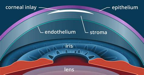 presbyopia surgery and monovision lasik