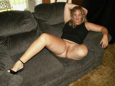 Double Amputee Girl Nude