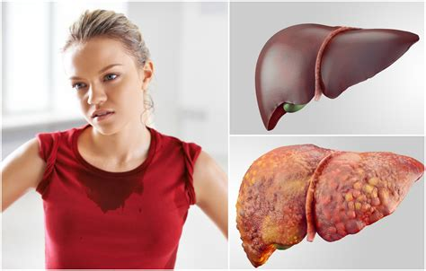 How Do You When You Are Detoxed by 15 Signs Your Liver Needs A Detox How To Do It