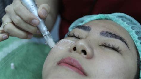 Bb Glow Skin Treatment Berkenalan Dengan Bb Glow Skin Treatment