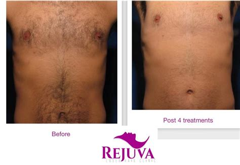 tattoo removal west midlands rejuva laser hair clinic hair removal salon in