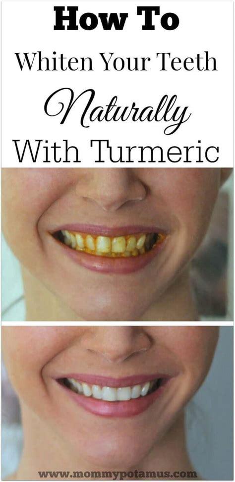 turmeric teeth whitening  home