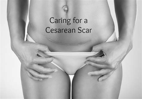 how to care for a c section incision 17 best images about cesarean section on pinterest labor