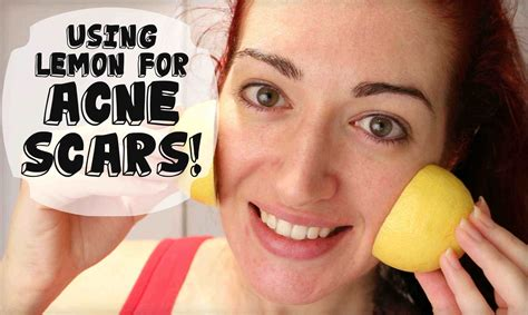 how to fade acne scars dark brown hairs fade acne scars with lemon naturally lighten skin at home