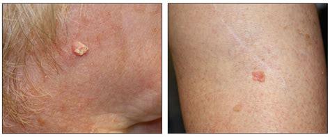 skin cancer treatment national cancer institute