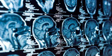 neurologia pavia meccanismi di malattia nuovi orientamenti diagnostici e