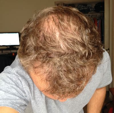 Regenepure Dr Shedding by Hair Loss Story And What You Can Do About Yours Pics Page 263 Bodybuilding Forums