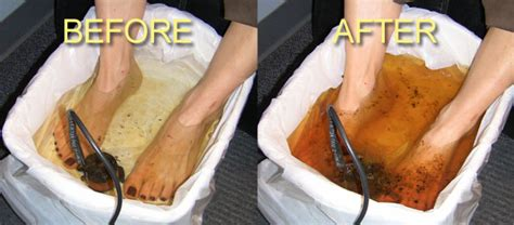 What S The Black From Foot Detox by Detox Foot Baths Atlanta Clinic