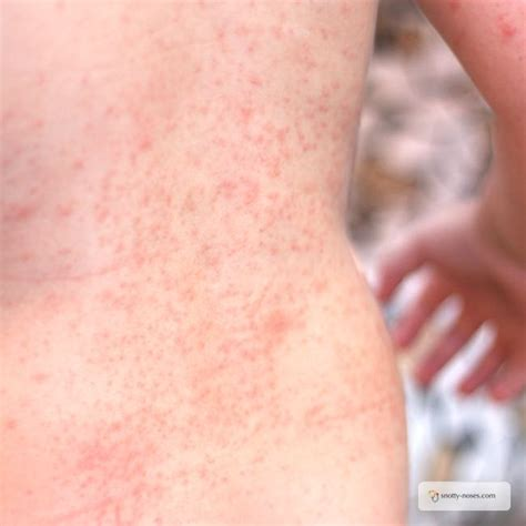 heat rash prickly heat rash www pixshark images galleries with a bite