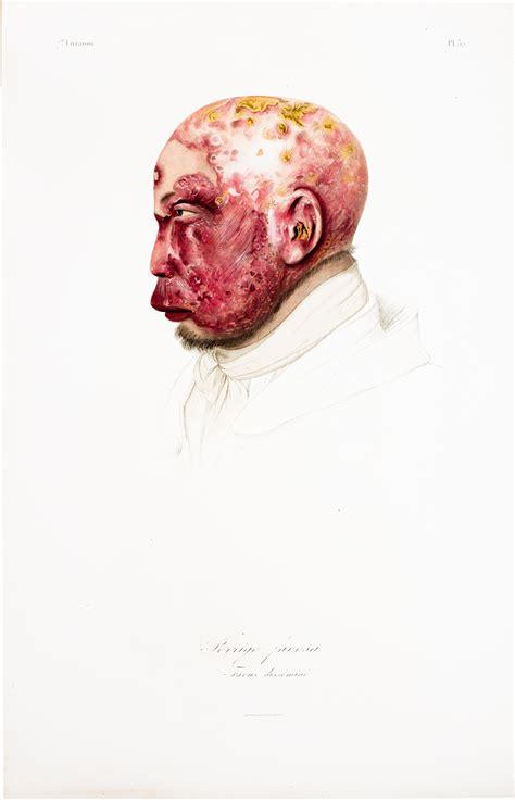 la lecon folio theatre 2070388654 lecons sur les maladies de la peau profess 233 es 224 l ecole de