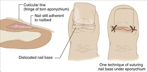 nail bed definition image gallery nail root