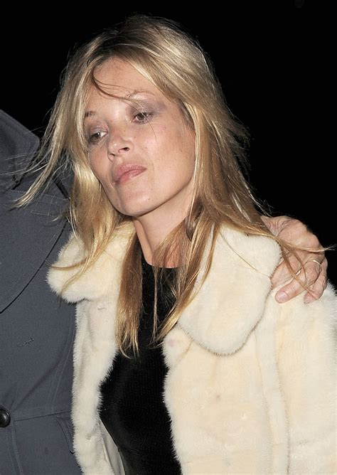 Anistons New Likes Kate Moss And Cocaine by 5 Destroyed By Abuse Celebie