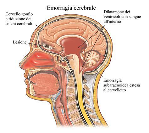 come togliere il mal di testa dolore alla nuca destra o sinistra e rimedi