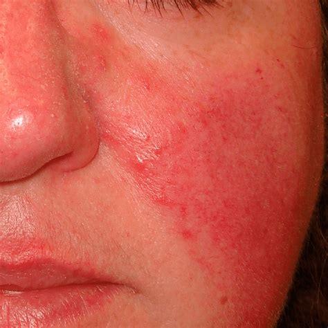 en la piel de 8499925197 eczemas dermatitis eczematosa alergias en la piel irritaciones con ronchas rojas y picaz 243 n