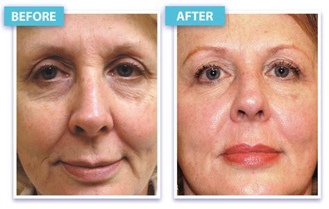 laser wrinkle removal before and after laser skin rejuvenation and wrinkle removal in los angeles