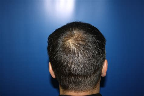 hair at the back of the head thinning hair loss jason shankey male grooming hairdressing