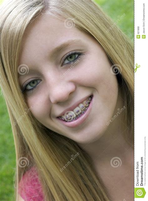 blonde models with braces braces girl stock photo image of teenagers portrait