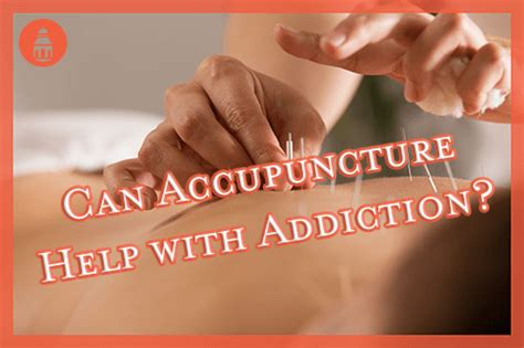 Ambien Rapid Detox by Can Acupuncture Help Californians Who Are Fighting