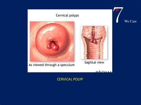 Decidua Basalis bleeding in early pregnancy