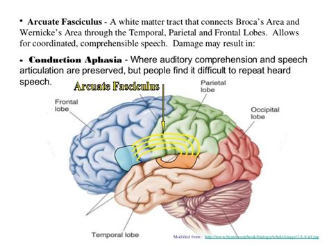 right motor cortex damage brain cortical regions and functions