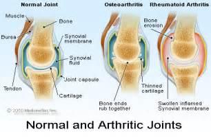 Osteoarthritis causes symptoms treatment osteoarthritis