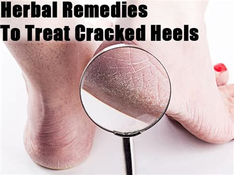 5 Steps To Soothe Chapped by Herbal Remedies To Treat Cracked Heels Boldsky