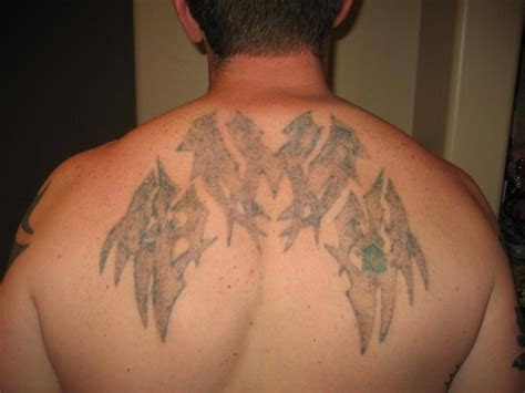 white tattoo removal healed white ink design on back tattoomagz