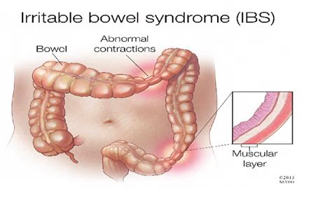 Ibs Stool Test by Trypophobia Test Are You Trypophobic Health Disorders