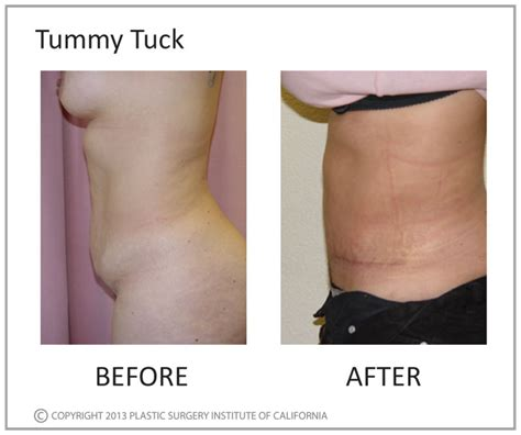 when can you have a tummy tuck after c section blog archives domainsinter