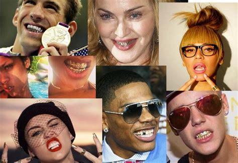 bocca di gabbia grillz e i denti finiscono in gabbia beautips