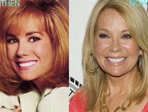 kathie lee gifford age kathy lee gifford comedian plastic surgery for fresh look
