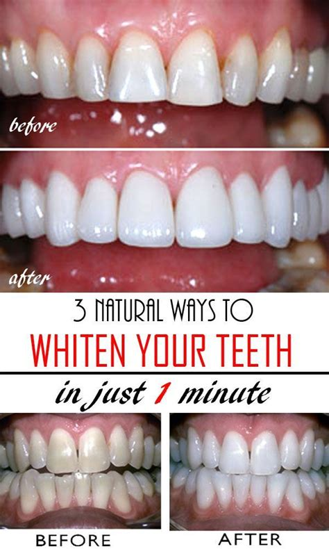 natural ways  whiten teeth  home diy beauty