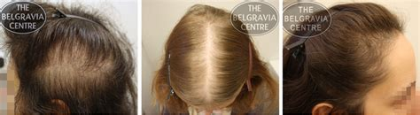 thinning hair in women on top of head guide to hair loss conditions diagnose yourself