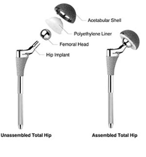medical tourism healthbase hip replacement implant faqs