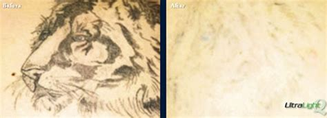 memphis tattoo removal removal tn the langsdon clinic germantown