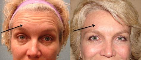 rejuve medspa in dallas offers botox treatment for severe