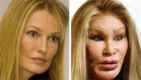 plastic surgery gone wrong 10 cases plastic surgeries gone horribly wrong these will