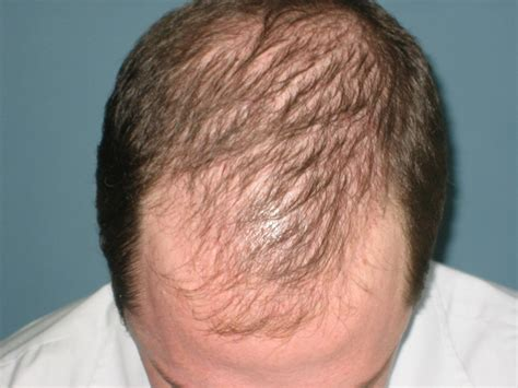 hair additions for thinning hair on top of head 12 best hair care products for thinning limp hair salon