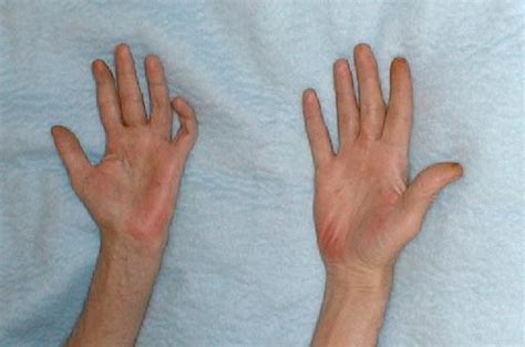 Relieve Burning Sensation In The And Palms With These Remedies And Personality Grooming by Rheumatoid Arthritis Symptoms Redness Skin Sensation