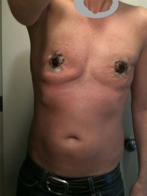 ftm operation photos of top surgery at two weeks ftmjasper s blog