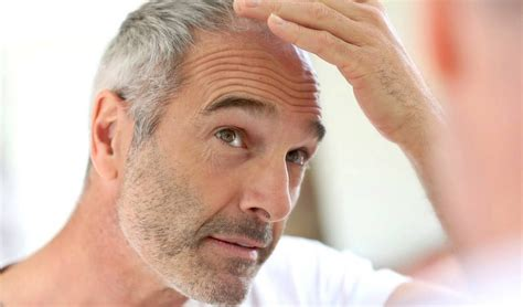 body hair loss in men over 50 the facts about hair loss in men