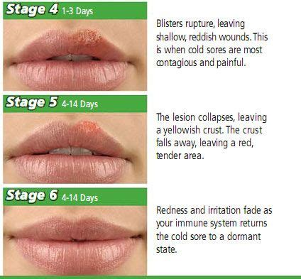 Detox Cant Get Rid Of Herpes by 18 Ways To Get Rid Of A Cold Sore Overnight Cold Sore
