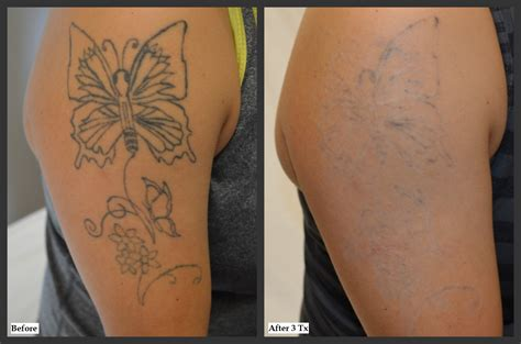 tattoo removal after one treatment before and after photos millefiori