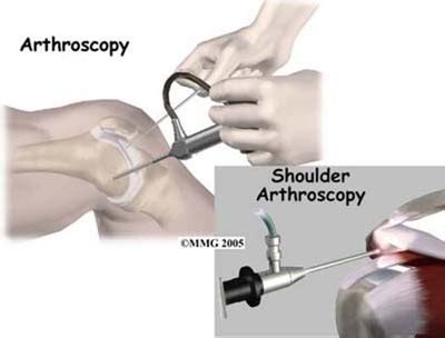 an insider s guide to orthopedic surgery a physical therapist shares the to a better recovery books arthroscopy orthopedic surgery algonquin il