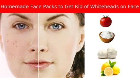 how to get rid of blackheads whiteheads zits acne fast 9 top face wash for whiteheads serpden